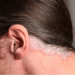 Kopfhaut-Psoriasis