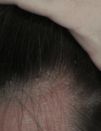 scalp-dandruff-seb-derm