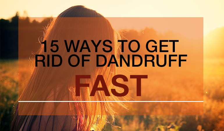 15 ways to get rid of dandruff fast