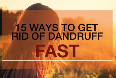 how to get rid of dry scalp and dandruff fast
